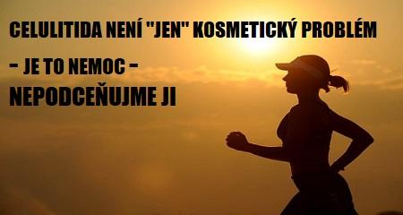 """Jitka Bičíková: CELULITIDA NENÍ """"JEN"""" KOSMETICKÝ PROBLÉM - JE TO NEMOC - NEPODCEŇUJME JI"""